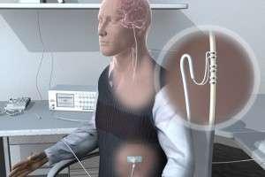 Électrode de stimulation sur le nerf vague