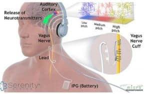 Stimulation du nerf vague et de l'audition