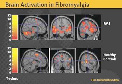fibromyalgie activation cerveau